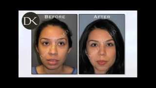 Primary Rhinoplasty with Great Results