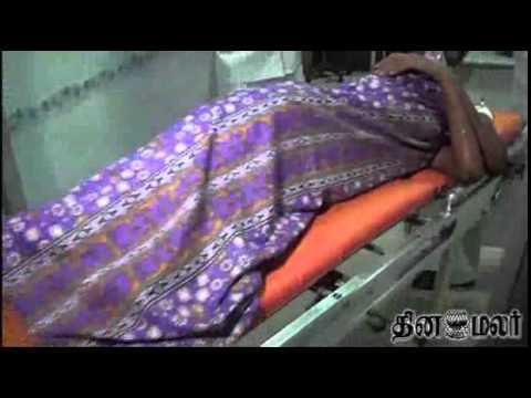 Acid Poured On College Girl In Madurai - Dinamalar Sep 12th 2014 Tamil Video News video