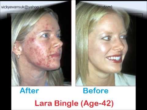 Organic Acne Cure - Get Rid of Acne Naturally !