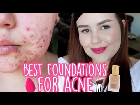 BEST FOUNDATIONS FOR ACNE | My Top 5 Favourite Foundations