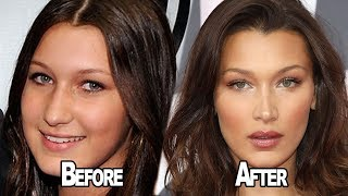 Download Lagu Bella Hadid OPENS UP About Having Plastic Surgery! Gratis STAFABAND