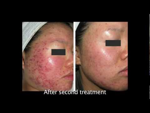 Dr Natalie's advice about how to treat acne and acne scarring