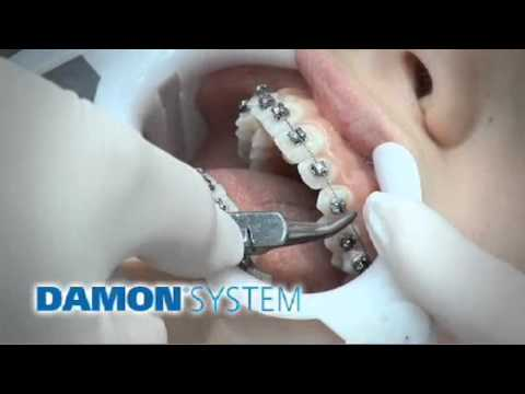 The Damon Braces System Maryland -- Bethesda Dental Specialties