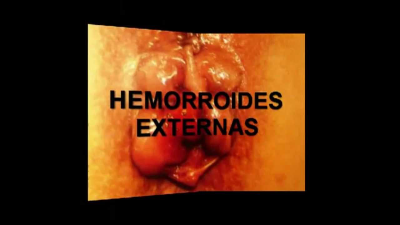 HEMORROIDES DESAPARECEN EN 48 HORAS, SI FUNCIONA - YouTube