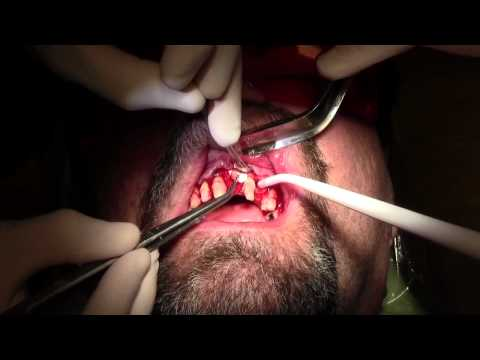 Extraction-Bone Grafting-CCL Surgery