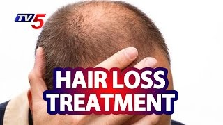 Hair Loss with Androgenetic Alopecia Treatment & Management | Good Health | TV5 News