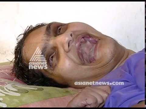 Polio victim lalitha and father from kozhikode seeks financial help