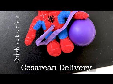 Playdough Surgery 🔪🤰🏻- Cesarean Delivery
