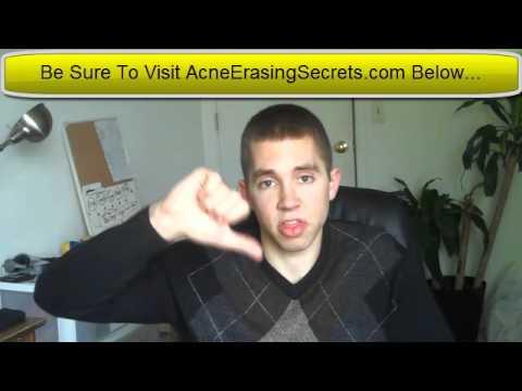 Aveda Botanicals Acne Treatment - Aveda Acne Review