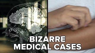 Bizarre Medical Cases That Still Confuse Doctors