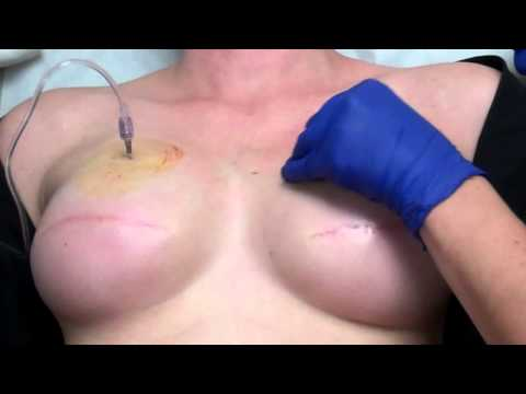 Expander for breast reconstruction