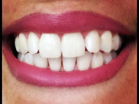 dents blanches comment fabriquer son dentifrice bio en 1 min sans fluor sans produits. Black Bedroom Furniture Sets. Home Design Ideas