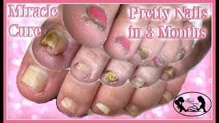👣Pedicure Tutorial Miracle Cure for Pretty Healthy Toenails 👣