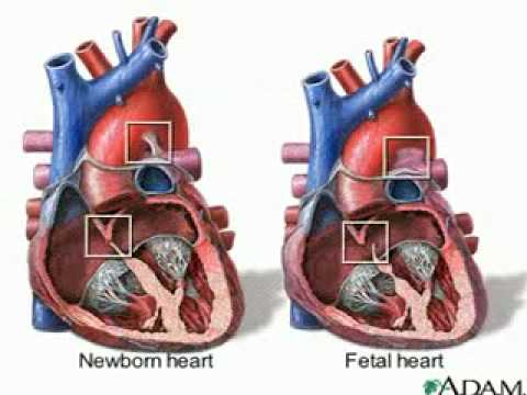Circulation And Blood besides Annelida moreover APIINotes5 20Cardiac 20Cycle moreover Lecture 11 The Lymphatic System And Immunity together with Fish Circulatory System. on circulatory system blood flow