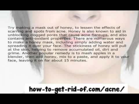 Controlling Acne Yourself At Home