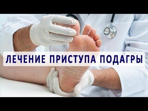 местное лечение подагры суставов