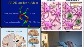 Alzheimer's Disease: Prevention & Treatment