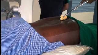CAUDAL EPIDURAL INJECTION VIDEO - By Dr. Vicky Nevagi, Pain clinic of India, Goa Branch