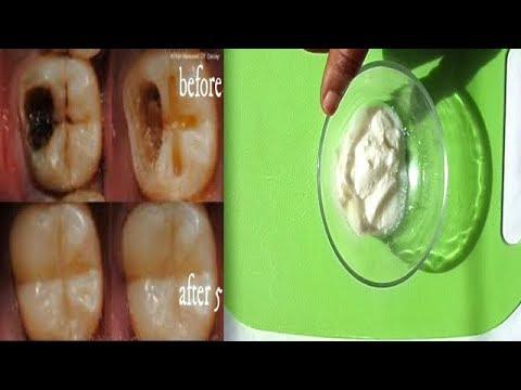 Почему гниют десны и зубы