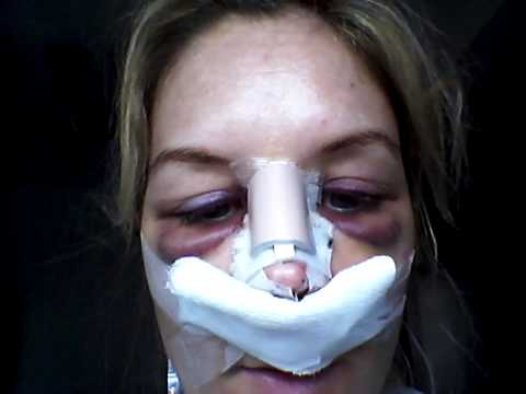 Rhinoplasty  Day 2 Recovery  Youtube. Termite Inspection Certification. Pmp Certification San Diego Omro Care Center. Free Online Email Marketing University Of Wv. Greene County Tech School Ford Fusion Mondeo. Website Maker With Free Domain Name. Final Cut Pro Vs Premiere Spanish News Online. Emr Electronic Medical Record. Buy A Mailing List By Zip Code