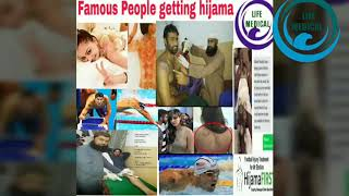 What is cupping(hijama).& Benefit of cupping (hijama).