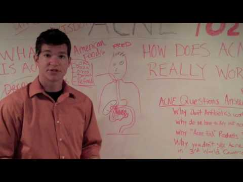 Acne 102: The Death Of Acne Natural Acne Cure Mindset!