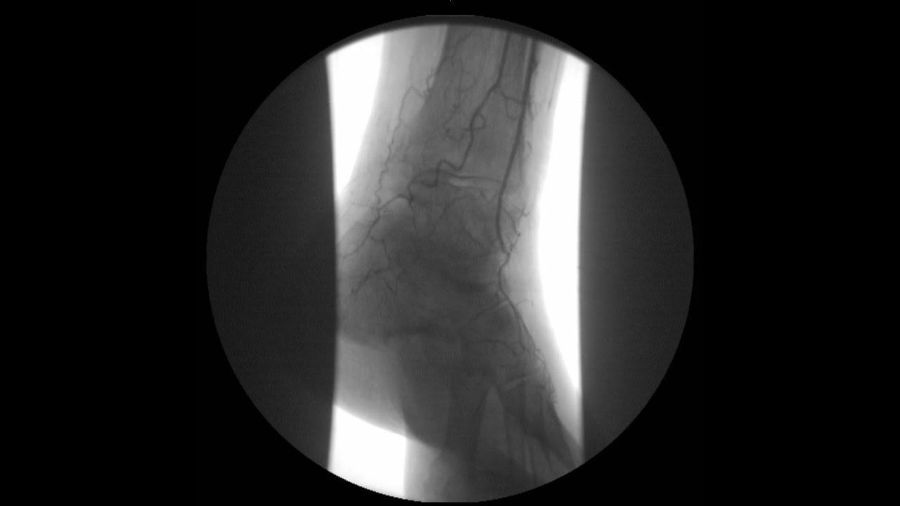 Flebolog y el escaneo duplex de las venas de los pies