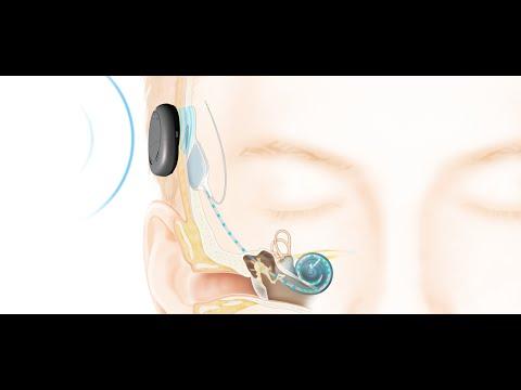 cochlear implant debate