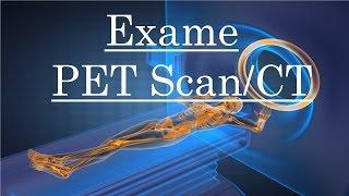 Como Funciona o Exame PET SCAN/CT