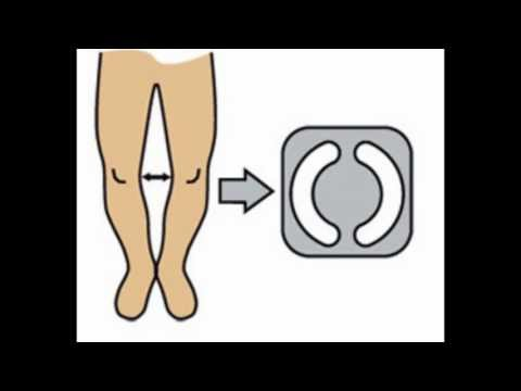 Bow legs. knock knees. genu varum correction treatment exercises
