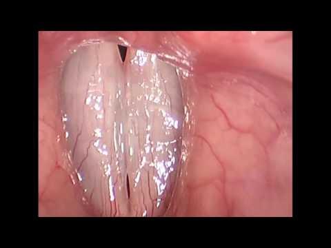 Rigid Stroboscopy Clinical Video