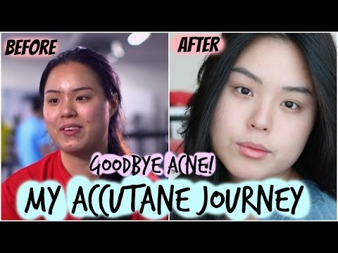 GOODBYE ACNE!!   My Accutane Journey!   Side Effects and did it work?