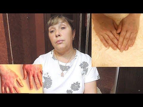 0 - Дерматит контактний лікування народними засобами