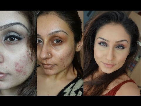 Teenage Adult acne & get rid of acne blemishes    Raji Osahn