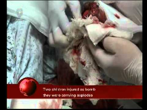 # Bahrain 2 children injured as bomb they were carrying exploded