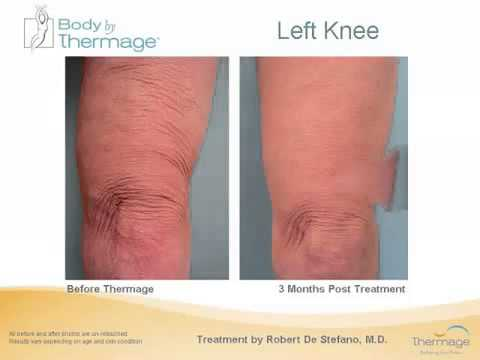 Thermage Skin Tightening & Face Lifts Sydney & Canberra   MD Cosmedical Solutions