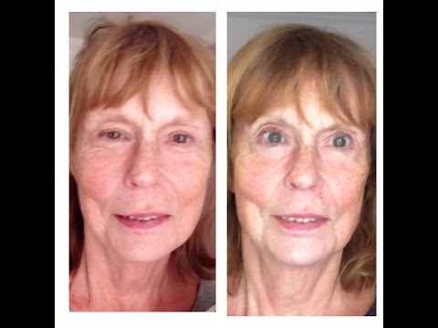 Microcurrent Facelift and the eyes: what you can expect after a series of treatments