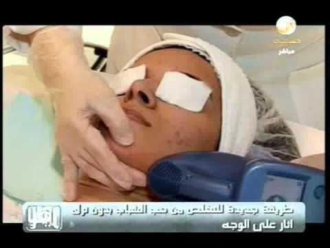 Aesthetica Clinic Dubai - Isolaz The Gold Standard for Treatment of Acne - R.K.flv