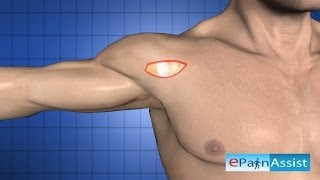 Shoulder Arthroscopy Procedure