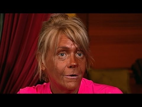 Tanning Mom  In Court, Denies Daughter, 5, Burned in Tan Salon: Does She Suffer from  Tanorexia ?