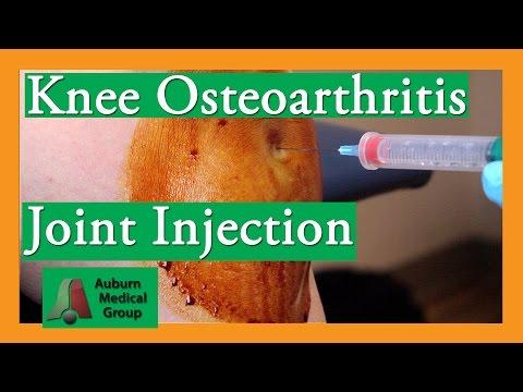Knee Osteoarthritis Steroid Joint Injection Treatment