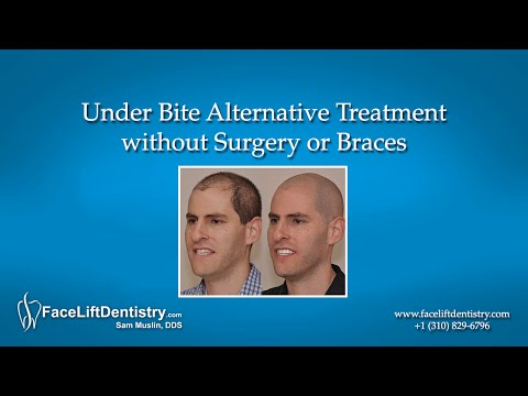Under Bite Alternative Treatment without Surgery or Braces
