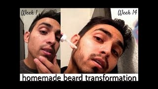 দাড়ি উঠানোর উপায়।  Grow Beard Faster 100% work