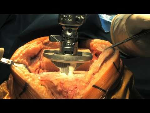Total Knee Replacement Surgery Part 2 - Update 2011 video