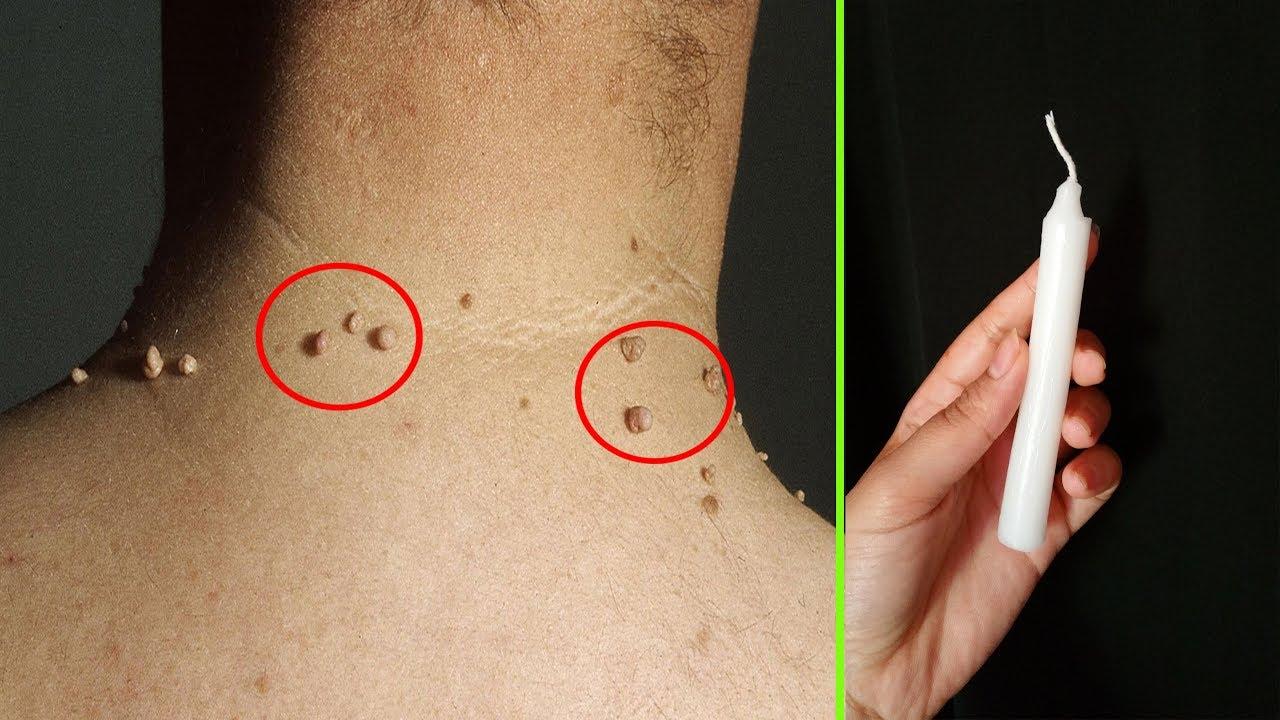 بشمعة واحدة فقط تخلصي من الثآليل ستتختفي وتموت للأبد /علاج الزوائد الجلدية