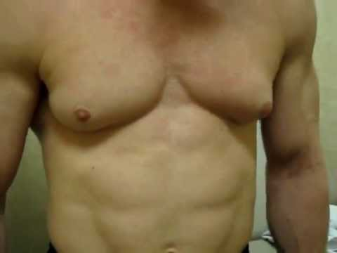 Gynecomastia Surgery in Houston: Male Breast Reduction
