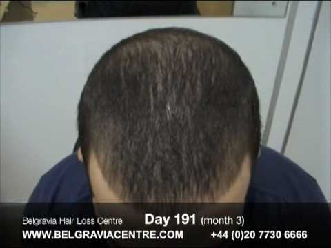 Hair Loss Treatment Video Diary - Comparison Day 1 to Day 191