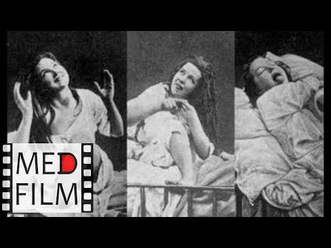 Фильм 4. Психические болезни (симптомы, синдромы) © Symptoms of menthal diseases