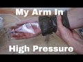 What Happens When I Put My Arm in a High Pressure Chamber ? Will It Be Crushed?