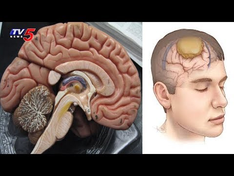 Brain Cancer Symptoms And Treatment | Yashoda Hospitals | Health File | TV5 News